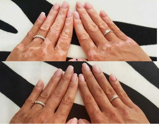 Le vitiligo, cette maladie rare qui provoque une dépigmentation de la peau